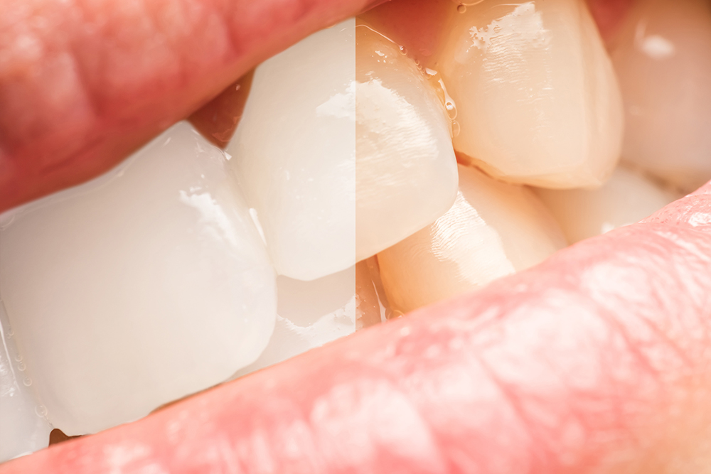 Oyster Point Dentistry - Teeth whitening