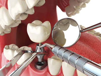 Oyster Point Dentistry - Dental Implants in Newport News, VA