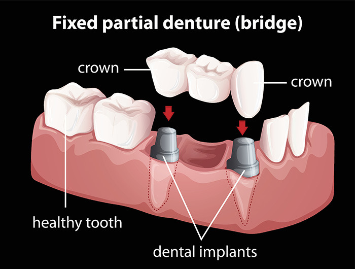 Oyster Point Dentistry - Dental Bridges, Newport, News, VA